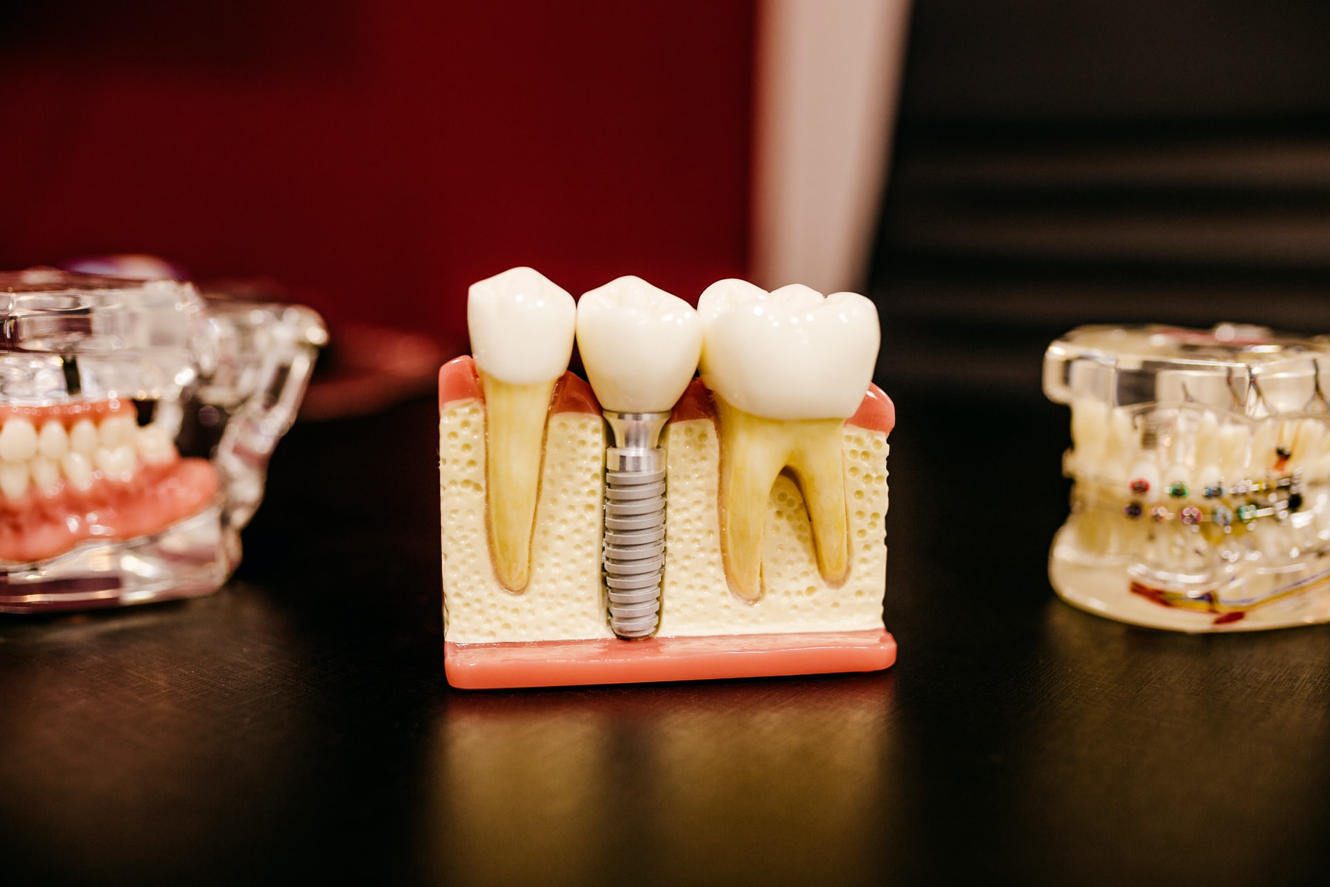 Root Canal Malaysia